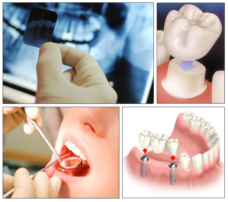 Servizi odontoiatrici, Dental Adriatic, Umago, Istria, Croazia